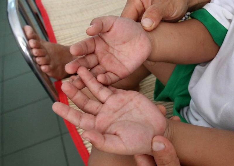 Dấu hiệu trẻ bị chân tay miệng trên tay