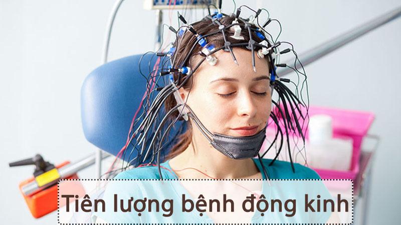 Bệnh động kinh không nguy hiểm. Tuy nhiên diễn ra không lường trước nên có thể gây nguy hiểm cho bệnh nhân