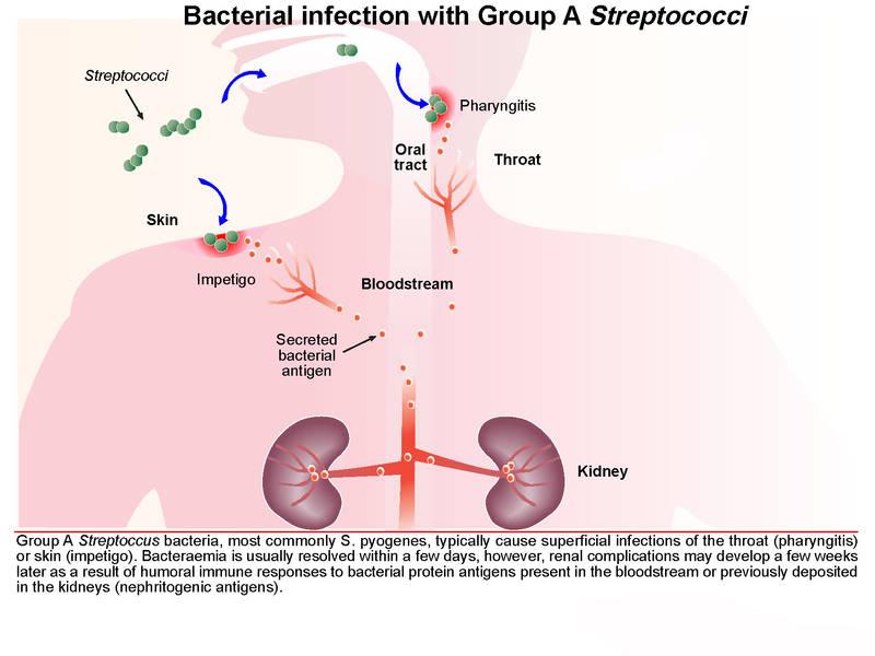 Liên cầu xâm nhập vào đường hô hấp hoặc viết thương hở vào cơ thể