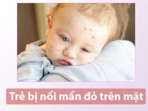 Trẻ bị nổi mẩn đỏ trên mặt