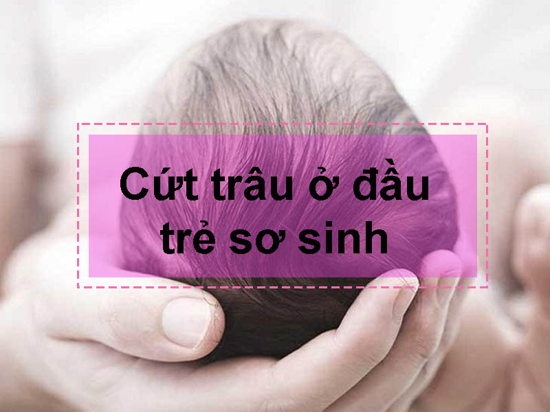 Cứt trâu ở đầu trẻ sơ sinh