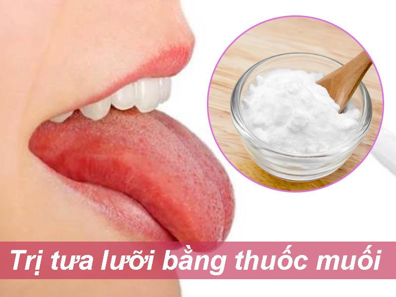 Trị tưa lưỡi bằng thuốc muối Natri bicarbonat