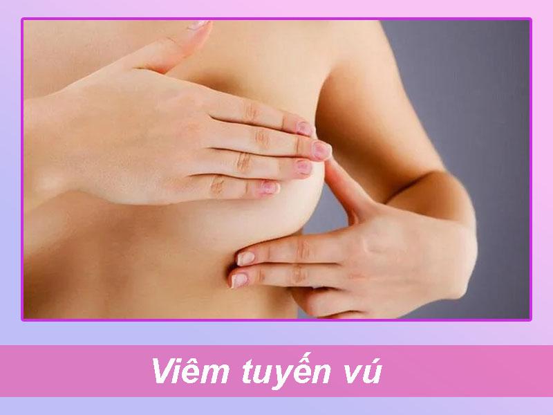 Bệnh lý viêm tuyến vú